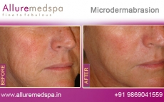 microdermabrasion-before-and-after-images-andheri-west-mumbai-india