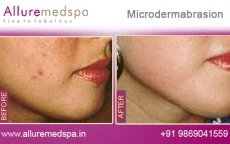microdermabrasion-before-and-after-photos-andheri-west-mumbai-india