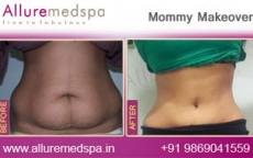 Abdominoplasty Surgery Before & After Images