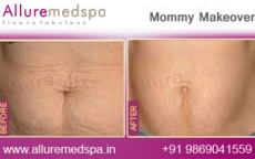 Stretch Marks Removal Treatment- Mommy Makeover