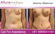 Breast Augmentation Surgery | Mommy Makeover Before & After Photos