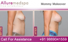 Breast Enlargement Before And After  Photo Gallery