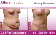 Breast Implants Before After Photos- Mommy Makeover