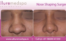 Rhinoplasty Augmentation Before and After Photo Gallery Mumbai, India