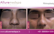 Nose Job ( Rhinoplasty Reduction) Before and After Results in Mumbai, India