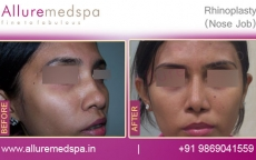 Twisted Nose Rhinoplasty Before After Results Mumbai, India