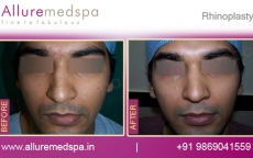 Male Rhinoplasty Surgery Before and After Photos, Gallery in Mumbai, India