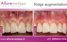 ridge-augmentation-before-after-gallery