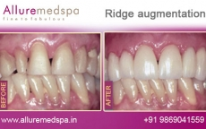ridge-augmentation-before-after-images