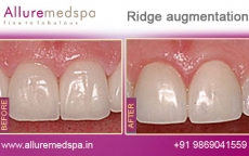 ridge-augmentation-before-after-photos