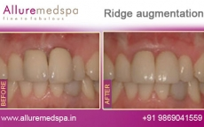 ridge-augmentation-before-after-pics
