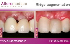 ridge-augmentation-before-after-pictures