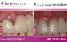 ridge-augmentation-before-after-results
