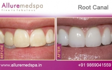 Teeth Root Canal Treatment Before after Photos