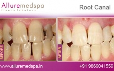 Tooth Root Canal Treatment Before after Photos