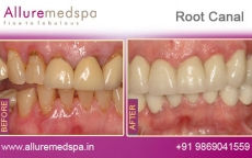 Dental Root Canal Treatment Before after Photos