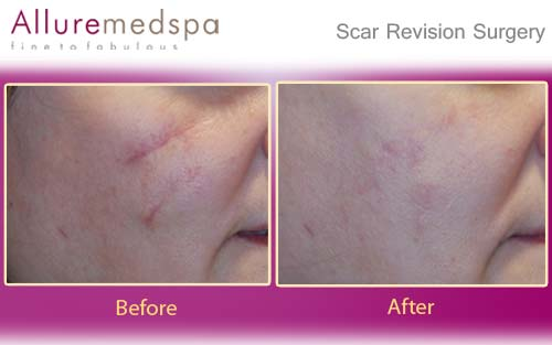 Scar revision surgery information doctors cost pictures india scar revision treatments laser scar removal surgery before after in mumbai sciox Choice Image