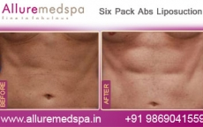 Six Pack Abs Laser Liposuction Before and After Gallery at Reasonable Price in Mumbai, India