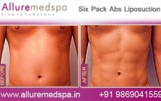 Six Pack Abs Laser Liposuction Before and After Gallery at Affordable Cost in Mumbai, India