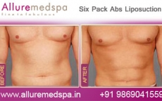 Six Pack Abs Vaser Liposuction Before and After Photos at Affordable Price in Mumbai, India