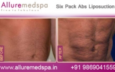 Six Pack Abs Tumescent Liposuction Before and After Pictures at Transparent Price in Mumbai, India