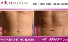 Six Pack Abs Power Assisted Liposuction Before and After Images at Reasonable Cost in Mumbai, India