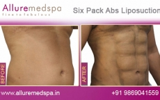 six-packs-abs-before-after-1