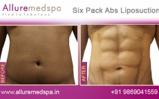 Six Pack Abs Tumescent Liposuction for Fat Removal Before and After Gallery by Celebrity Cosmetic Surgeon Dr. Milan Doshi in Mumbai, India