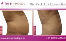 Six Pack Abs Vaser Liposuction Before and After Pictures at Reasonable Price in Mumbai, India