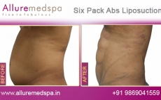 Six Pack Abs Laser Liposuction Before and After Images at Affordable Cost in Mumbai, India
