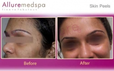 Chemical Peel Before and After Images by Celebrity Cosmetic Surgeon Dr. Milan Doshi in Mumbai, India