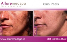 skin-peels-before-and-after-gallery-andheri-west-mumbai-india
