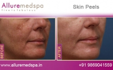 Chemical Skin Peel Treatment Before and After Photos at Affordable Price in Mumbai, India