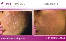 Chemical Skin Peel Treatment Before and After Gallery by Celebrity Cosmetic Surgeon Dr. Milan Doshi in Mumbai, India