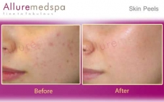 skin-peels-before-and-after2