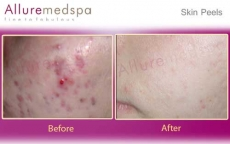 skin-peels-treatment-before-and-after-mumbai-india