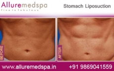 Stomach Lipo Before After Photos
