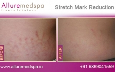 Stretch Marks Reduction Before and After Images in Andheri, Mumbai