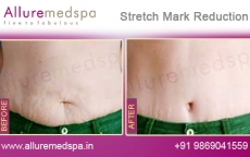 Cosmetic Laser Stretch Mark Removal Treatment Before & After Gallery