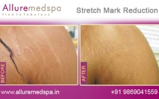 Laser Stretch Marks Removal On Hands Before And After Photos in Andheri, Mumbai