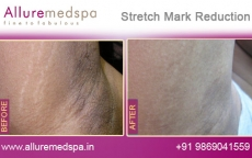 Stretch Marks Under Arms/Armpits Reduction Results in Andheri, Mumbai