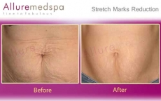 Stretch Marks Removal Treatment  on Stomach Before and After Pictures in Andheri, Mumbai