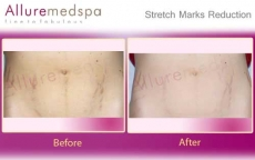 Laser Stretch Marks Removal Before & After Photos in Andheri, Mumbai, India
