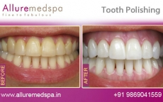 Teeth Polishing Treatment Before After Photos