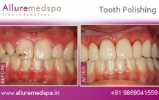 Tooth Polishing Treatment Before After Photos