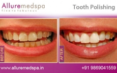 Dental Polishing Treatment Before After Photos