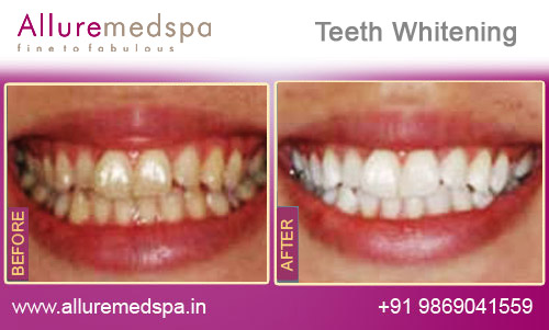 Whiter Image Teeth Whitening Pen Review - Teeth Whitening at Home.