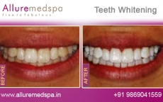 Tooth Whitening Treatment Before After Photos