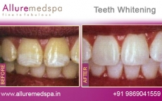 Teeth Whitening Treatment Before After Photos