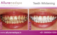Dental Whitening Treatment Before After Photos